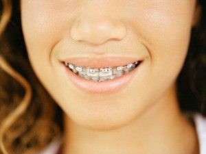 Teenage Girl with Braces --- Image by © Jerome Tisne/Corbis
