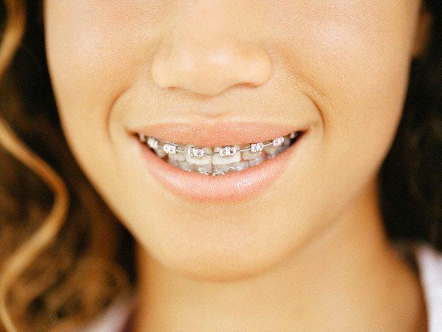 Украшать зубы бриллиантами
