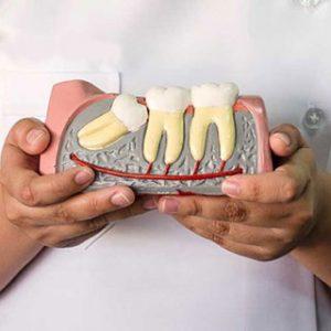 Problematic Wisdom Teeth