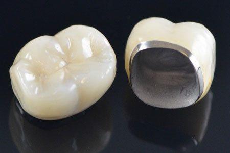 Porcelain Fused Metal